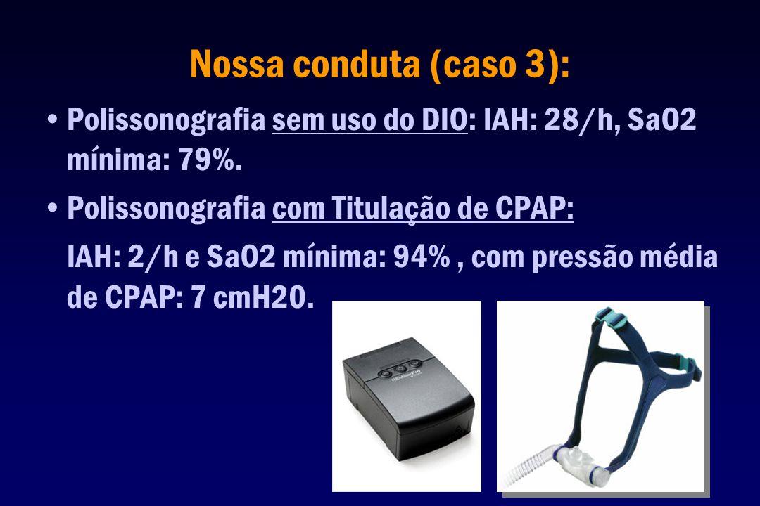 Nossa conduta (caso 3): Polissonografia sem uso do DIO: IAH: 28/h, SaO2 mínima: 79%. Polissonografia com Titulação de CPAP: IAH: 2/h e SaO2 mínima: 94