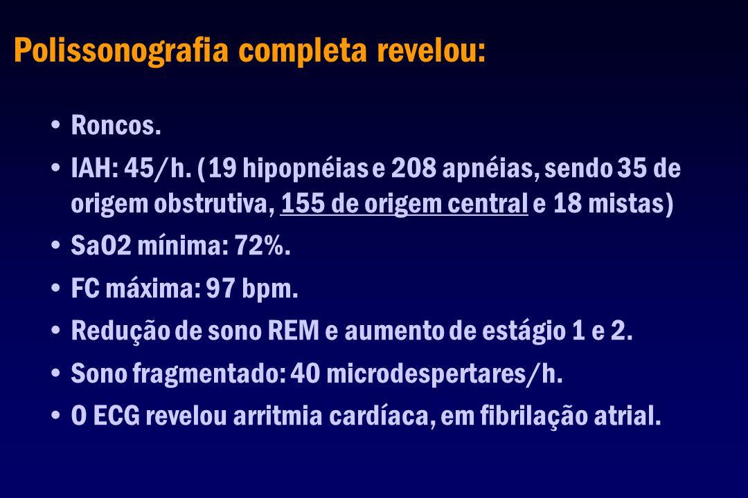 Polissonografia completa revelou: Roncos. IAH: 45/h. (19 hipopnéias e 208 apnéias, sendo 35 de origem obstrutiva, 155 de origem central e 18 mistas) S