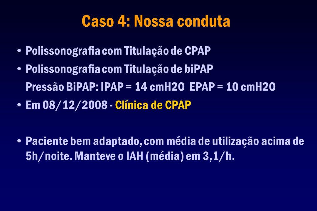 Caso 4: Nossa conduta Polissonografia com Titulação de CPAP Polissonografia com Titulação de biPAP Pressão BiPAP: IPAP = 14 cmH2O EPAP = 10 cmH2O Em 0