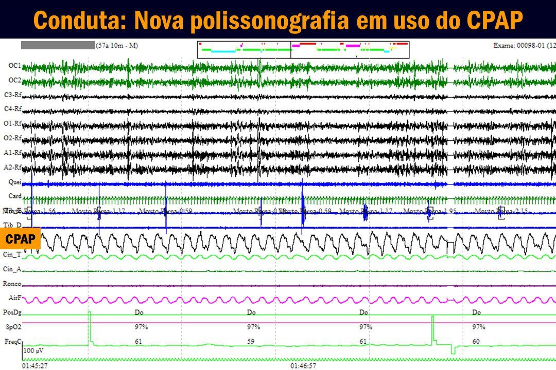 Conduta: Nova polissonografia em uso do CPAP CPAP