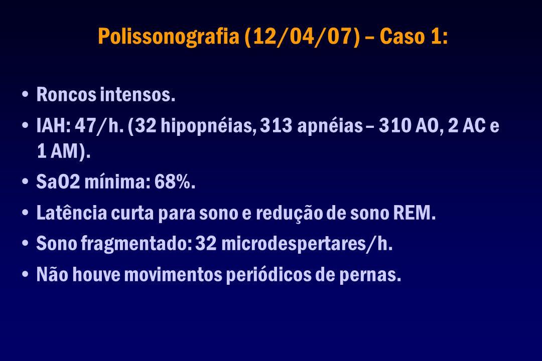 Polissonografia (12/04/07) – Caso 1: Roncos intensos. IAH: 47/h. (32 hipopnéias, 313 apnéias – 310 AO, 2 AC e 1 AM). SaO2 mínima: 68%. Latência curta