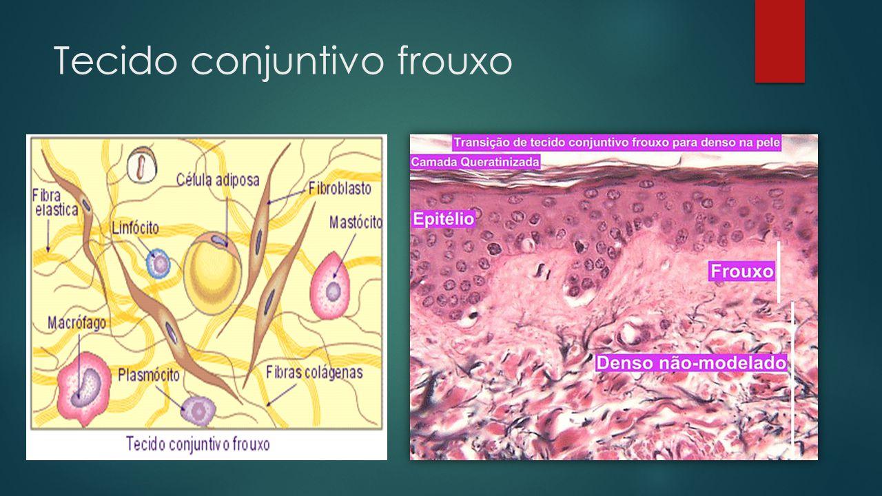 Tecido conjuntivo frouxo  Composto por todos os elementos do Tecido conjuntivo  Ampla distribuição no corpo  Consistência delicada (flexibilidade)  Presente na pele, pleura, pericárdio, peritônio, preenche espaços vazios, reveste vasos sanguíneos e glândulas  Células mais numerosas  Fibroblastos e macrófagos