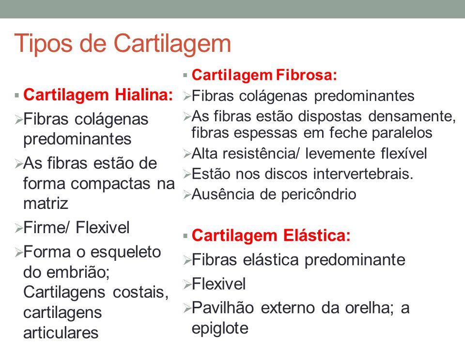 Tipos de Cartilagem  Cartilagem Hialina:  Fibras colágenas predominantes  As fibras estão de forma compactas na matriz  Firme/ Flexivel  Forma o