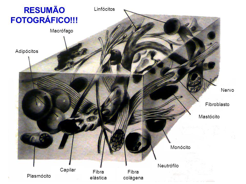 Linfócitos Macrófago Adipócitos Plasmócito Capilar Fibra elástica Fibra colágena Neutrófilo Monócito Mastócito Fibroblasto Nervo RESUMÃO FOTOGRÁFICO!!
