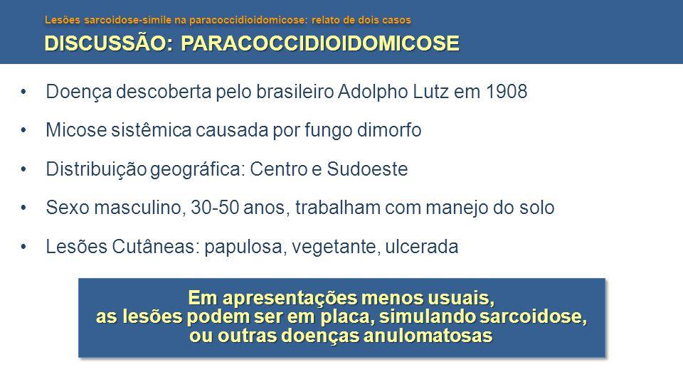Lesões sarcoidose-símile na paracoccidioidomicose: relato de dois casos DISCUSSÃO: PARACOCCIDIOIDOMICOSE Doença descoberta pelo brasileiro Adolpho Lut
