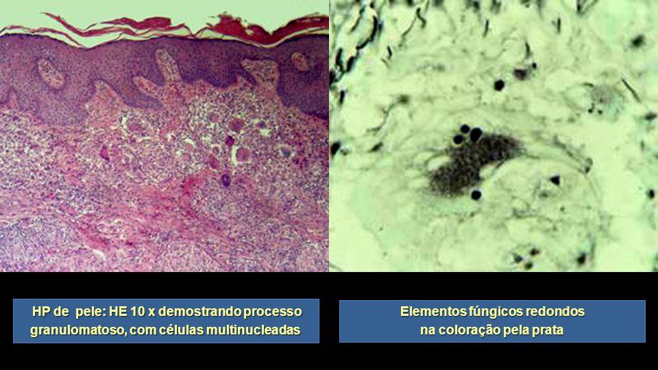 HP de pele: HE 10 x demostrando processo granulomatoso, com células multinucleadas HP de pele: HE 10 x demostrando processo granulomatoso, com células