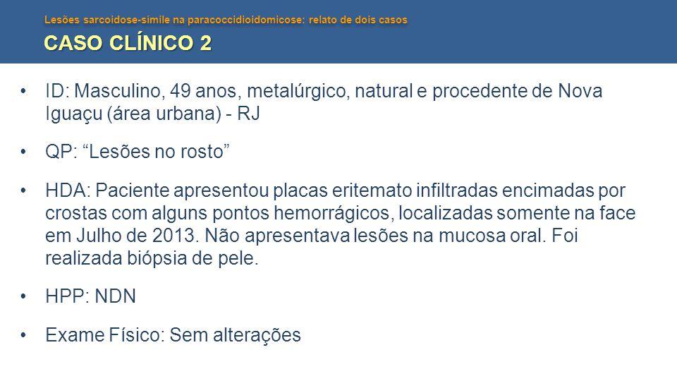 Lesões sarcoidose-símile na paracoccidioidomicose: relato de dois casos CASO CLÍNICO 2 ID: Masculino, 49 anos, metalúrgico, natural e procedente de No