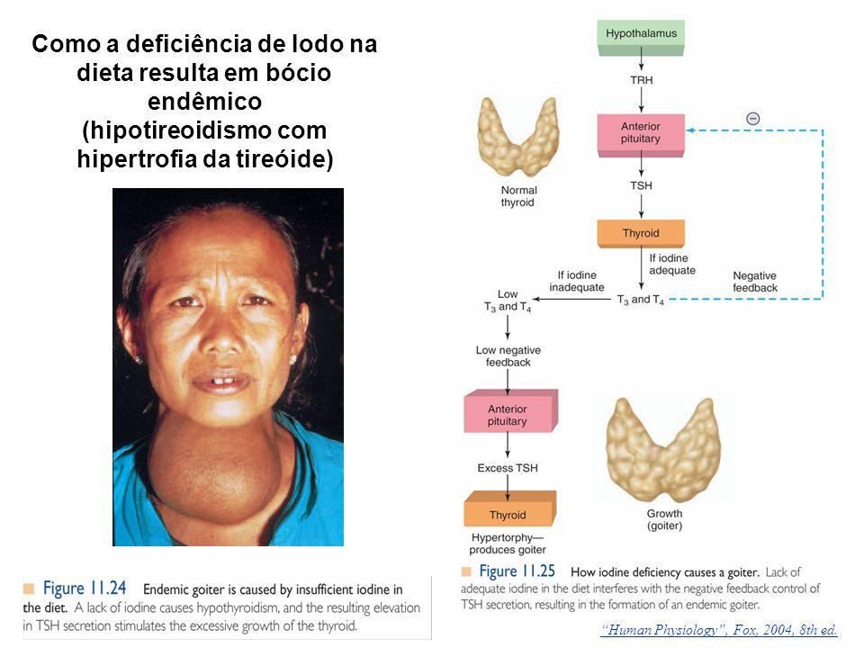 """Como a deficiência de Iodo na dieta resulta em bócio endêmico (hipotireoidismo com hipertrofia da tireóide) """"Human Physiology"""", Fox, 2004, 8th ed."""