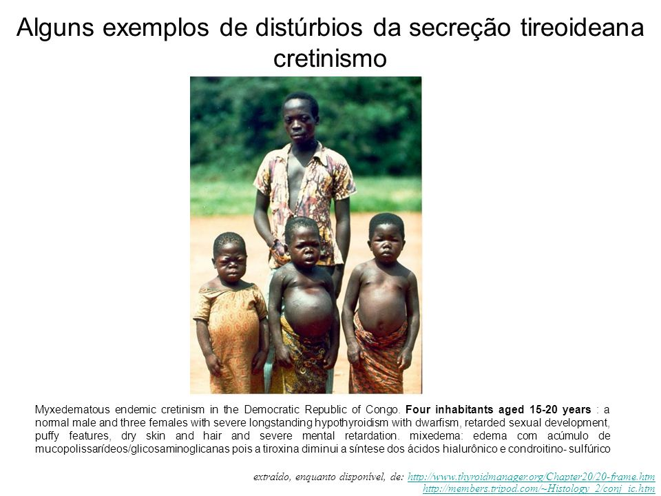 Myxedematous endemic cretinism in the Democratic Republic of Congo.