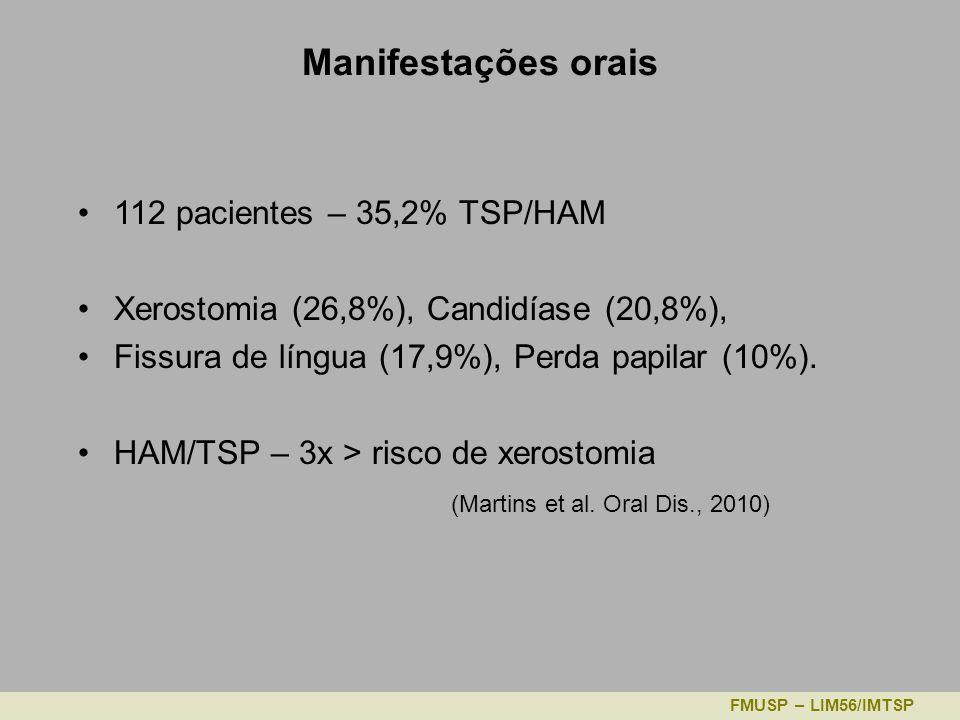 Manifestações orais 112 pacientes – 35,2% TSP/HAM Xerostomia (26,8%), Candidíase (20,8%), Fissura de língua (17,9%), Perda papilar (10%).