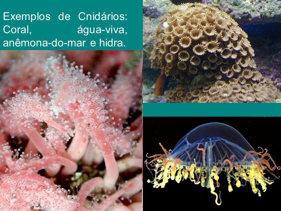 Cifozoários: representados pelas águas-vivas.Têm o corpo em forma de medusa.
