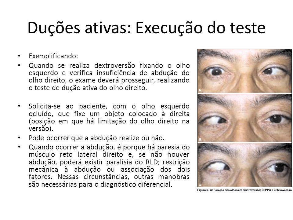 Duções ativas: Execução do teste Exemplificando: Quando se realiza dextroversão fixando o olho esquerdo e verifica insuficiência de abdução do olho di