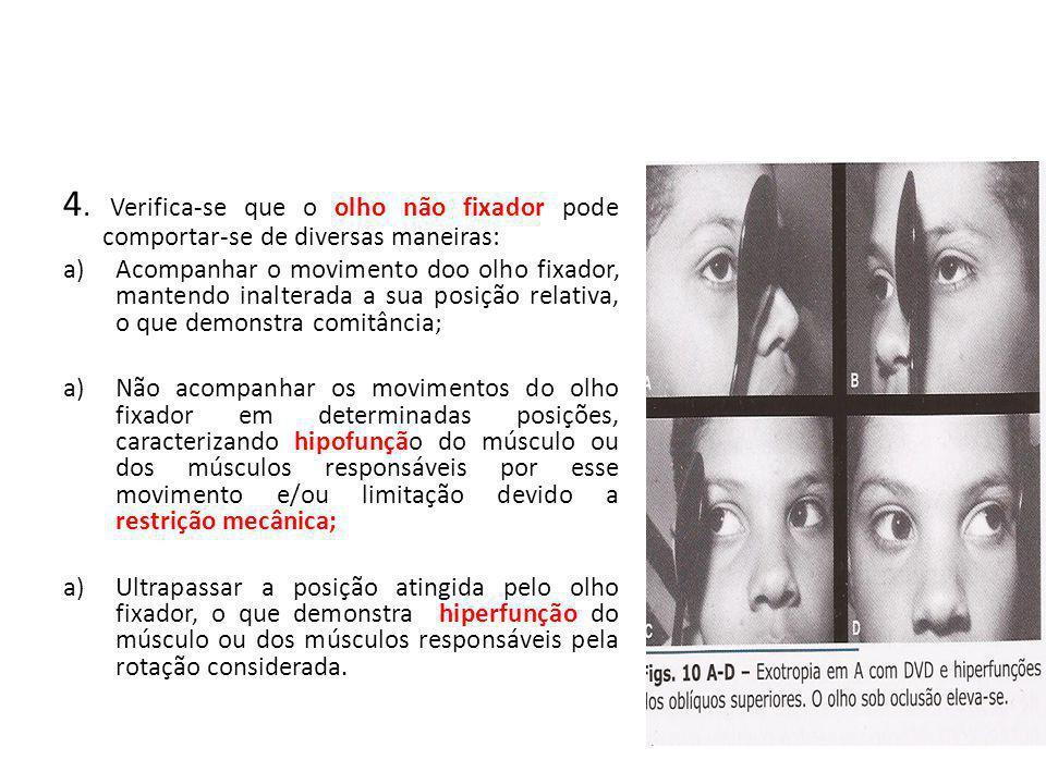 4. Verifica-se que o olho não fixador pode comportar-se de diversas maneiras: a)Acompanhar o movimento doo olho fixador, mantendo inalterada a sua pos