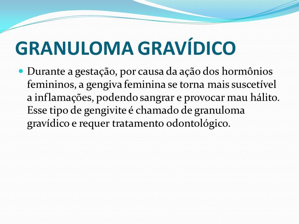 GRANULOMA GRAVÍDICO Durante a gestação, por causa da ação dos hormônios femininos, a gengiva feminina se torna mais suscetível a inflamações, podendo