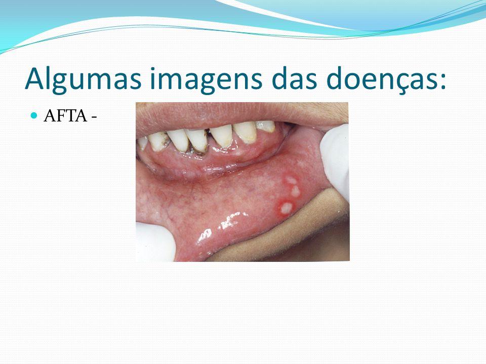 Algumas imagens das doenças: AFTA -