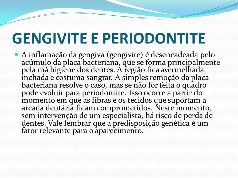 GENGIVITE E PERIODONTITE A inflamação da gengiva (gengivite) é desencadeada pelo acúmulo da placa bacteriana, que se forma principalmente pela má higi