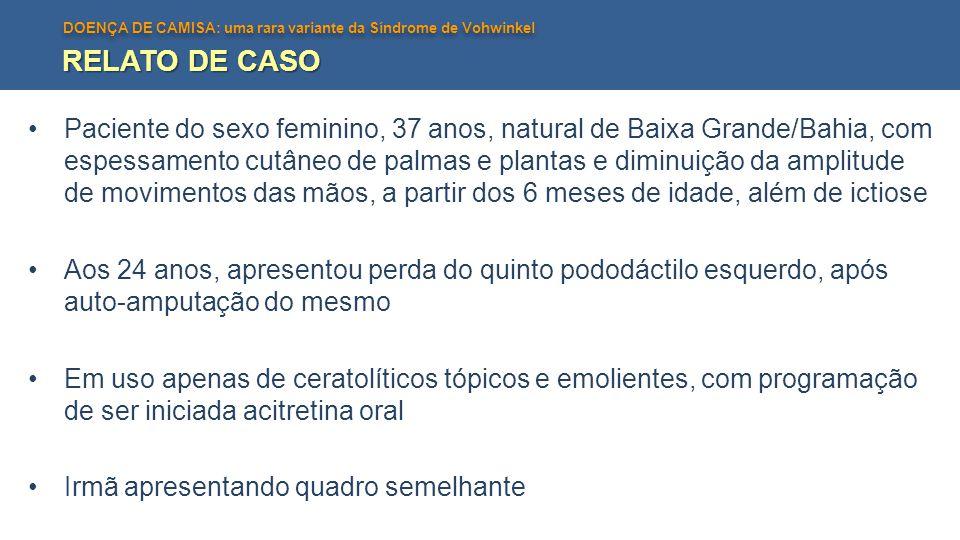 DOENÇA DE CAMISA: uma rara variante da Síndrome de Vohwinkel RELATO DE CASO Paciente do sexo feminino, 37 anos, natural de Baixa Grande/Bahia, com esp