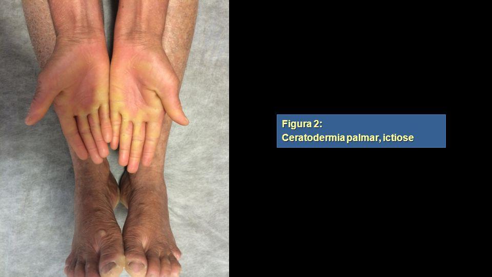 Figura 2: Ceratodermia palmar, ictiose Figura 2: Ceratodermia palmar, ictiose