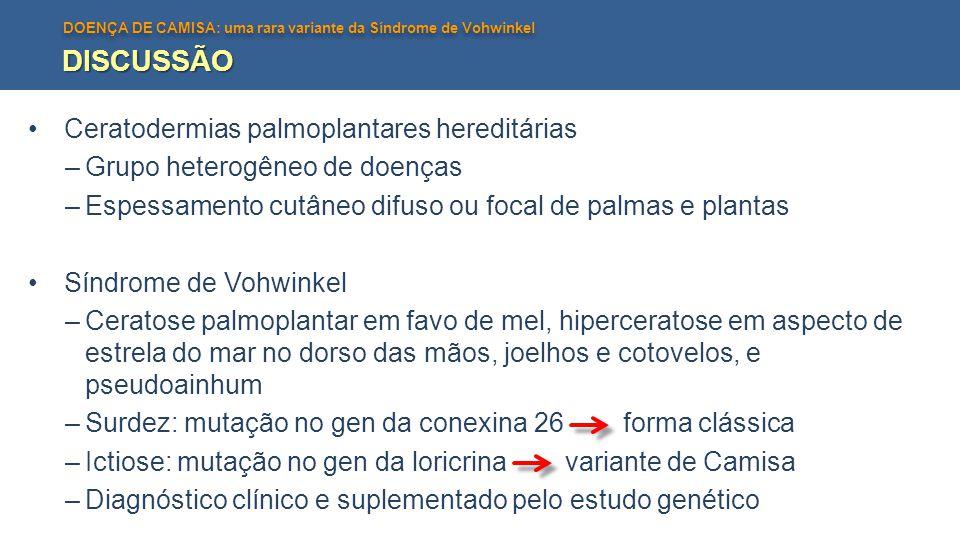 DOENÇA DE CAMISA: uma rara variante da Síndrome de Vohwinkel DISCUSSÃO Ceratodermias palmoplantares hereditárias –Grupo heterogêneo de doenças –Espess