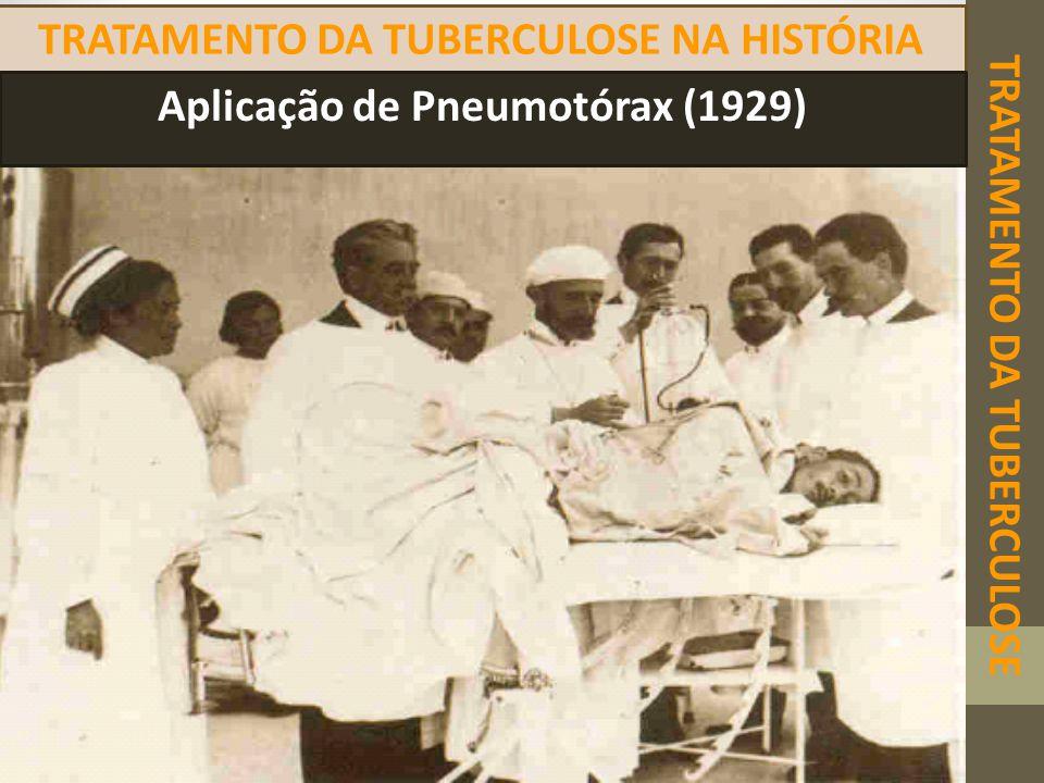 TRATAMENTO DA TUBERCULOSE TRATAMENTO DA TUBERCULOSE NA HISTÓRIA Aplicação de Pneumotórax (1929)