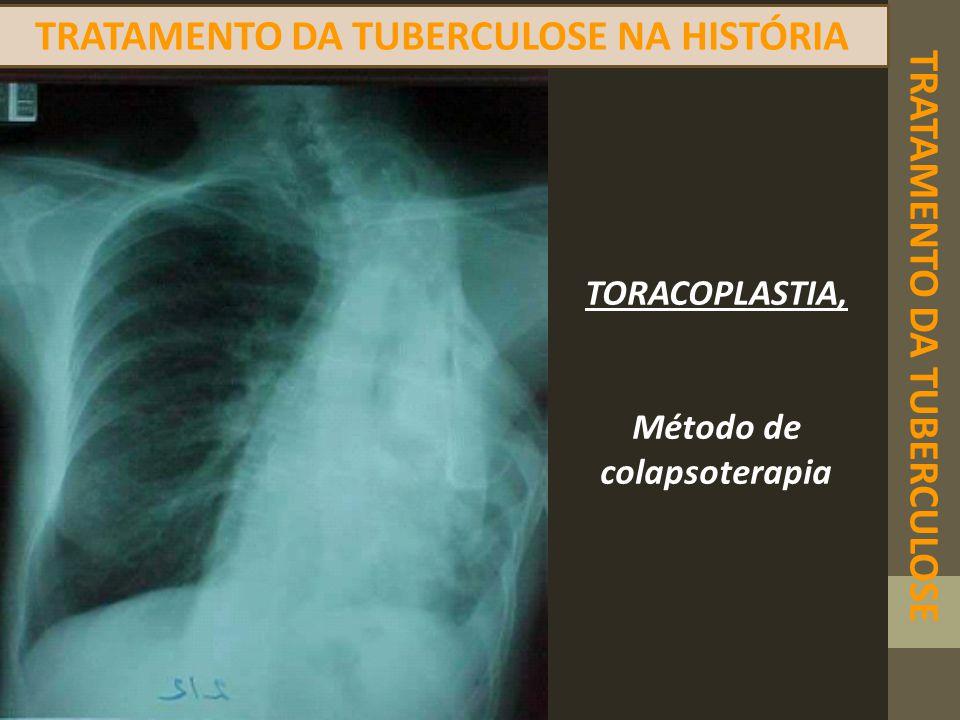 TRATAMENTO DA TUBERCULOSE TRATAMENTO DA TUBERCULOSE NA HISTÓRIA TORACOPLASTIA, Método de colapsoterapia