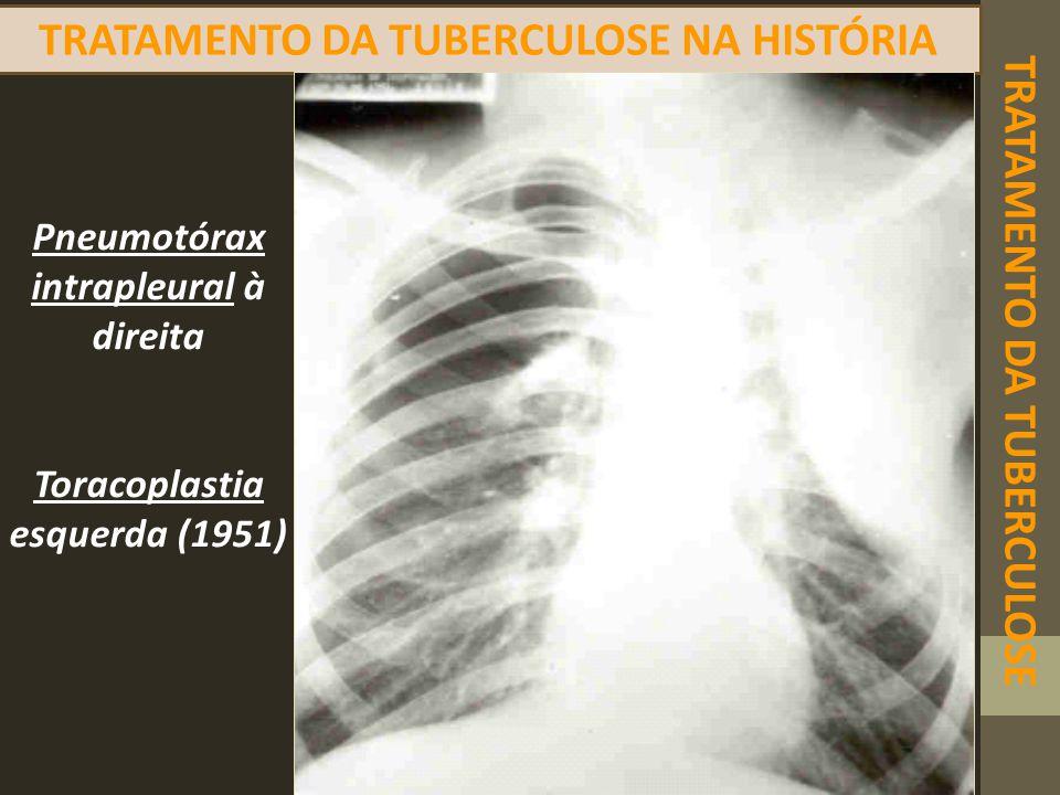 TRATAMENTO DA TUBERCULOSE TRATAMENTO DA TUBERCULOSE NA HISTÓRIA Pneumotórax intrapleural à direita Toracoplastia esquerda (1951)