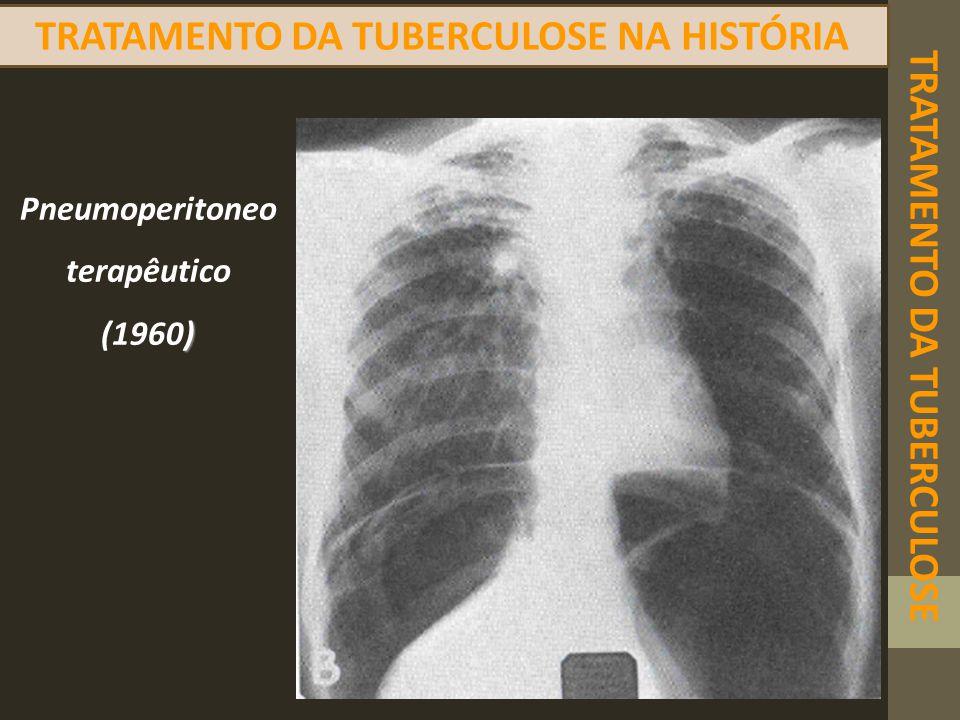 TRATAMENTO DA TUBERCULOSE TRATAMENTO DA TUBERCULOSE NA HISTÓRIA Pneumoperitoneo terapêutico ) (1960)
