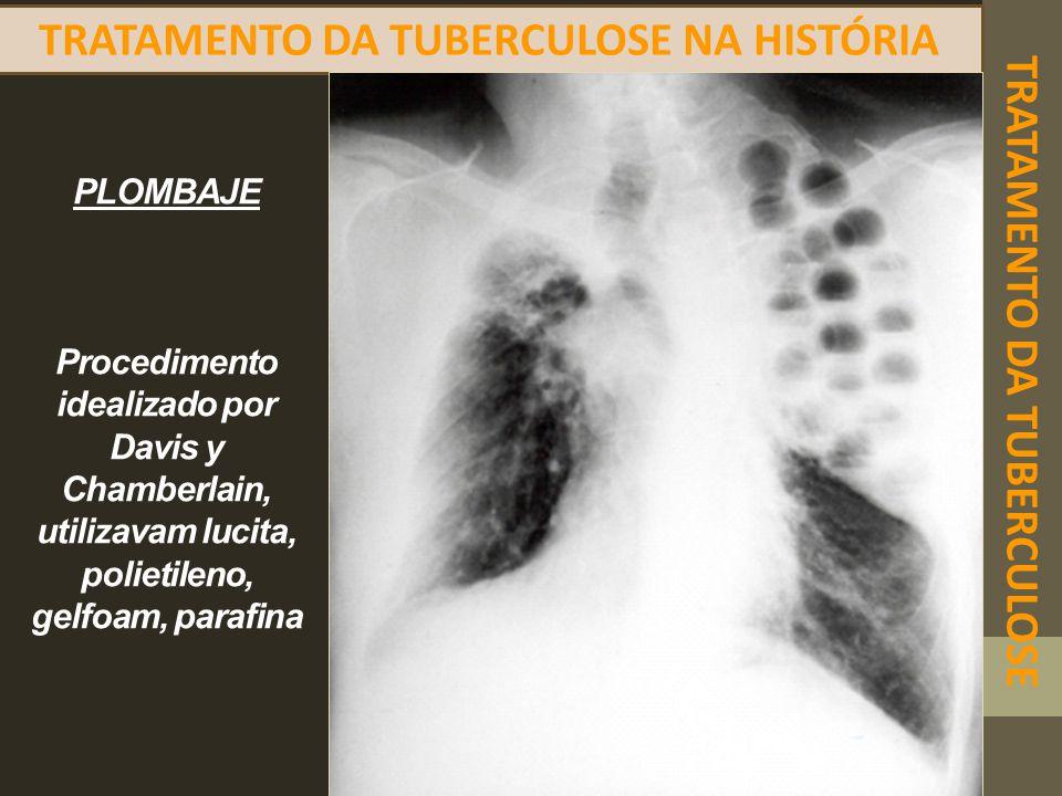 TRATAMENTO DA TUBERCULOSE TRATAMENTO DA TUBERCULOSE NA HISTÓRIA PLOMBAJE Procedimento idealizado por Davis y Chamberlain, utilizavam lucita, polietile