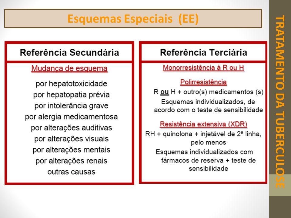 Esquemas Especiais (EE) TRATAMENTO DA TUBERCULOSE