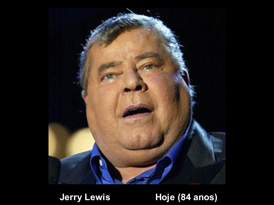Jerry Lewis Hoje (84 anos)