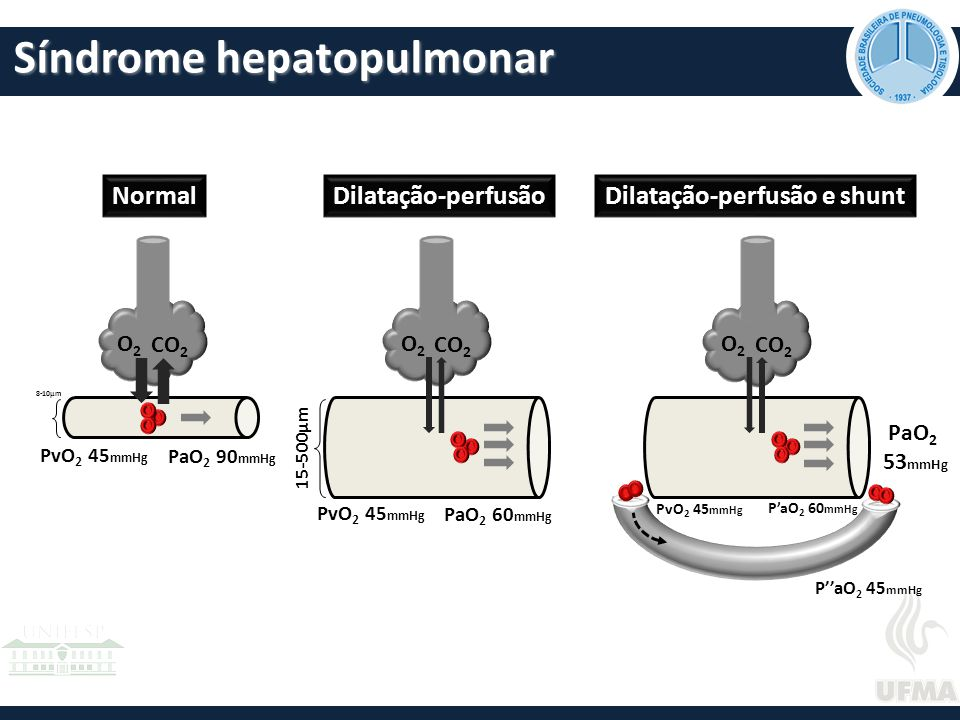Síndrome hepatopulmonar O2O2 CO 2 O2O2 O2O2 NormalDilatação-perfusãoDilatação-perfusão e shunt 8-10μm 15-500μm PvO 2 45 mmHg PaO 2 90 mmHg P''aO 2 45 mmHg PaO 2 53 mmHg PvO 2 45 mmHg PaO 2 60 mmHg PvO 2 45 mmHg P'aO 2 60 mmHg