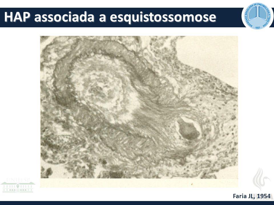 HAP associada a esquistossomose Faria JL, 1954