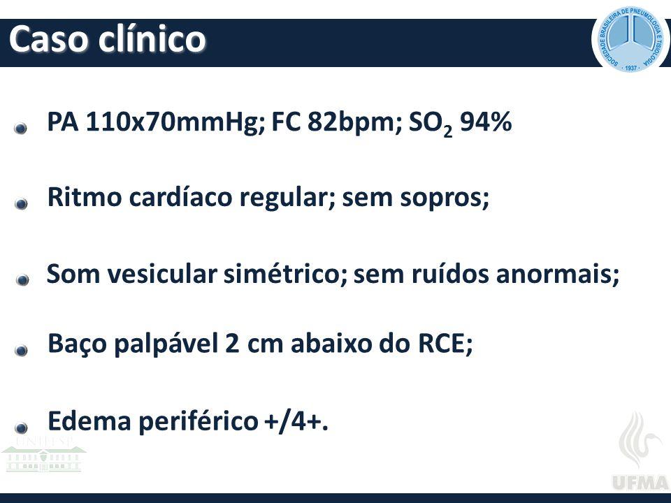 PA 110x70mmHg; FC 82bpm; SO 2 94% Ritmo cardíaco regular; sem sopros; Baço palpável 2 cm abaixo do RCE; Edema periférico +/4+.