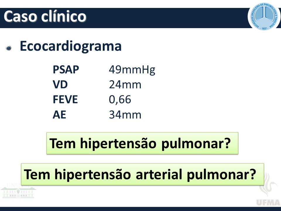 Ecocardiograma PSAP 49mmHg VD 24mm FEVE 0,66 AE34mm Tem hipertensão pulmonar.