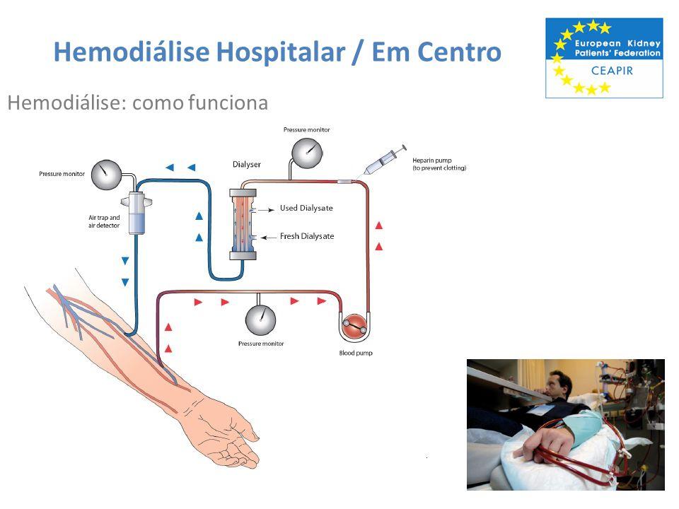 Hemodiálise Hospitalar / Em Centro Prós Feita com o apoio de profissionais treinados.