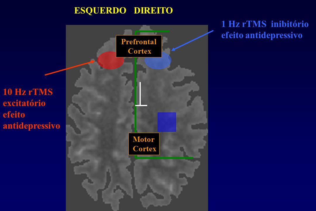 ESQUERDO DIREITO 1 Hz rTMS inibitório efeito antidepressivo 10 Hz rTMS excitatório efeito antidepressivo Motor Cortex Prefrontal Cortex