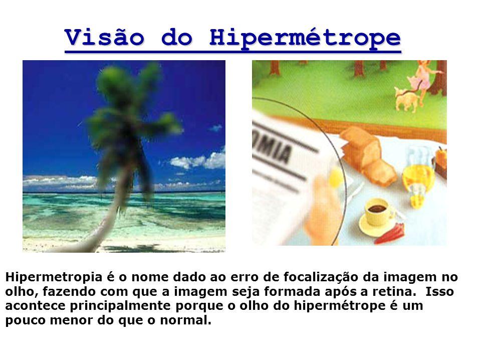 Visão do Hipermétrope Hipermetropia é o nome dado ao erro de focalização da imagem no olho, fazendo com que a imagem seja formada após a retina. Isso