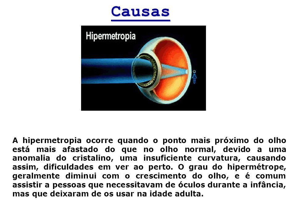 Causas A hipermetropia ocorre quando o ponto mais próximo do olho está mais afastado do que no olho normal, devido a uma anomalia do cristalino, uma i