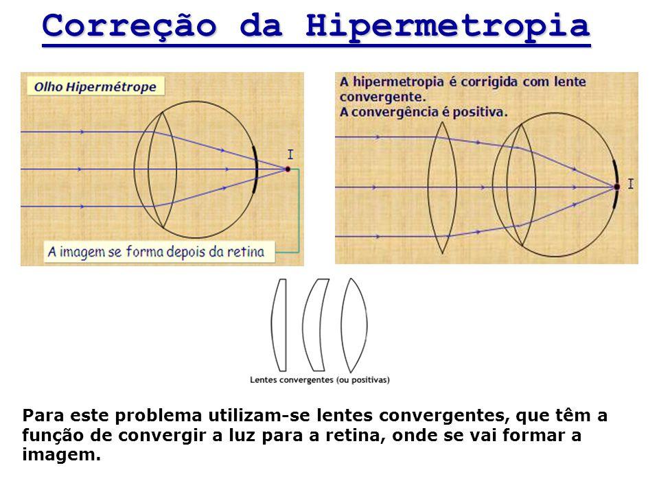 Correção da Hipermetropia Para este problema utilizam-se lentes convergentes, que têm a função de convergir a luz para a retina, onde se vai formar a