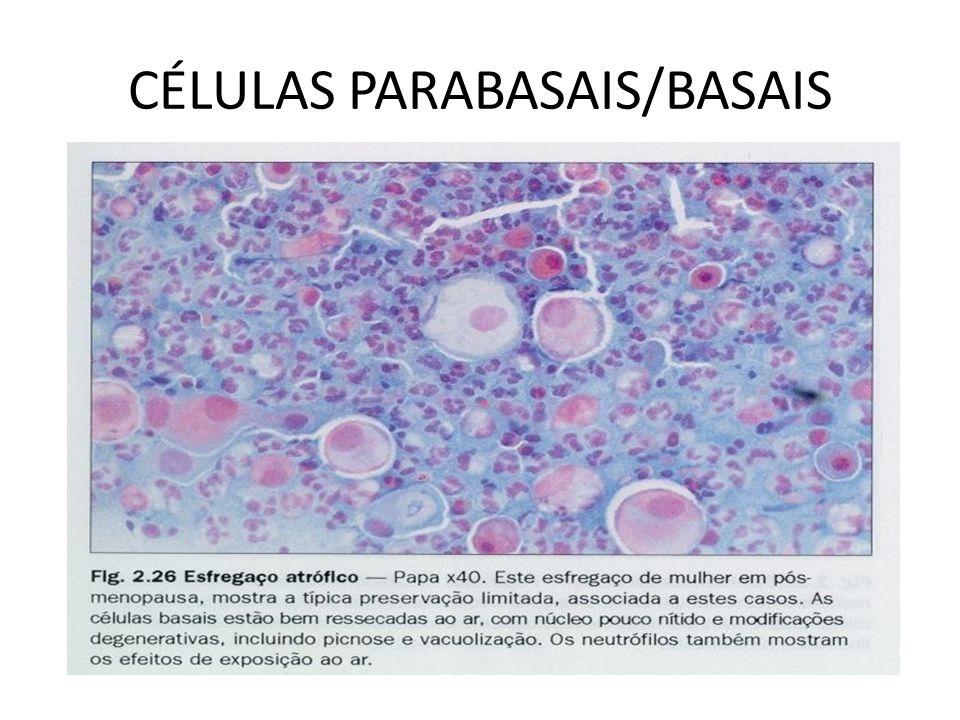 CÉLULAS PARABASAIS/BASAIS