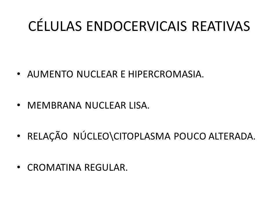 CÉLULAS ENDOCERVICAIS REATIVAS AUMENTO NUCLEAR E HIPERCROMASIA. MEMBRANA NUCLEAR LISA. RELAÇÃO NÚCLEO\CITOPLASMA POUCO ALTERADA. CROMATINA REGULAR.