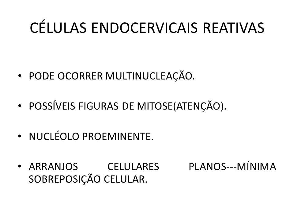 CÉLULAS ENDOCERVICAIS REATIVAS PODE OCORRER MULTINUCLEAÇÃO.