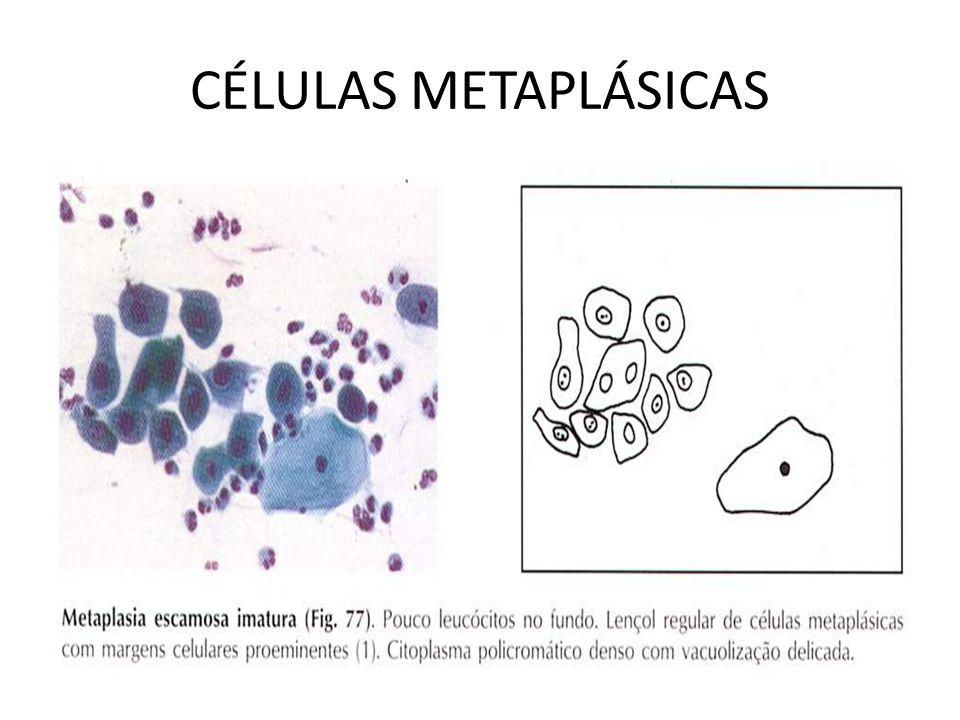 CÉLULAS METAPLÁSICAS