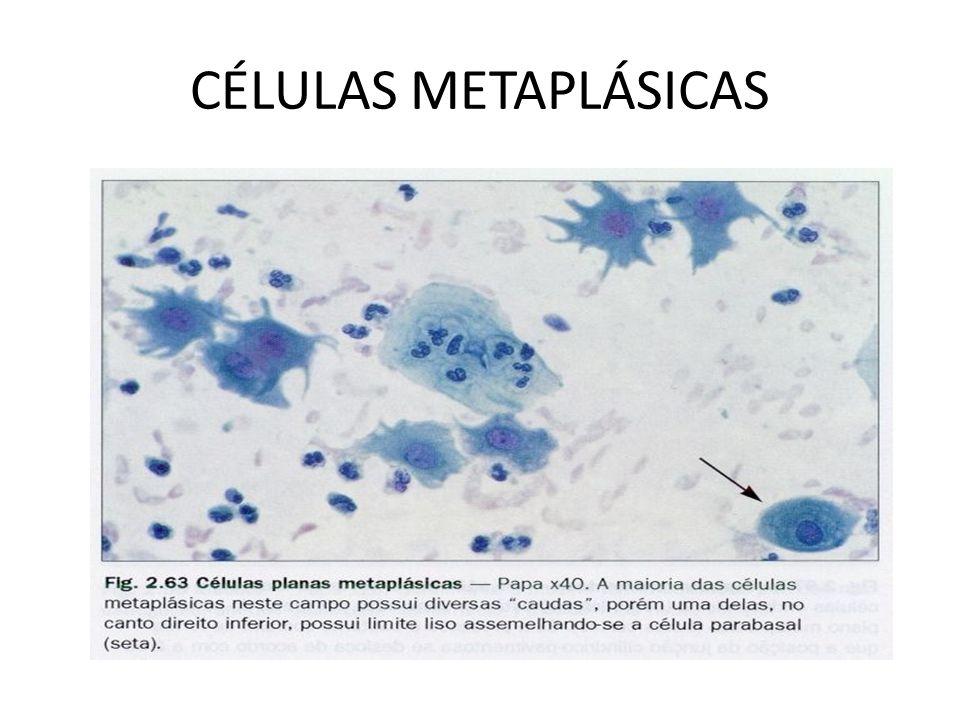 METAPLASIA ESCAMOSA Metaplasia Escamosa: epitélio neo-formado a partir das células de Reserva do epitélio cilíndrico transformado em células escamosas.