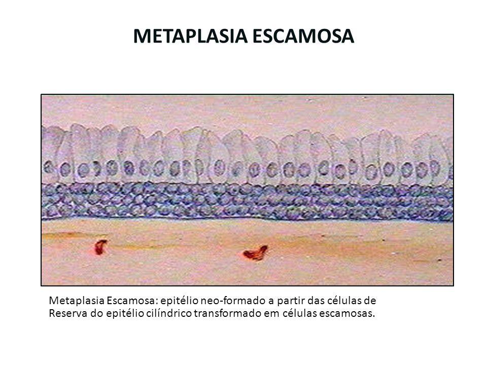 METAPLASIA ESCAMOSA Metaplasia Escamosa: epitélio neo-formado a partir das células de Reserva do epitélio cilíndrico transformado em células escamosas
