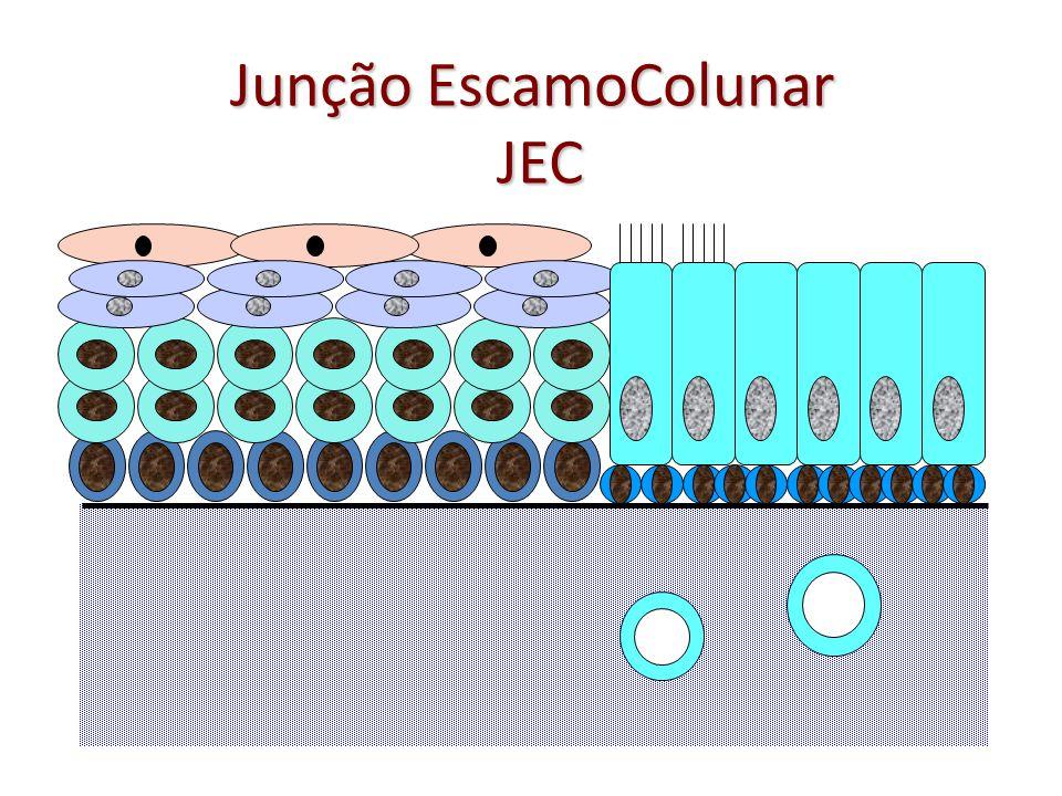 Junção EscamoColunar JEC