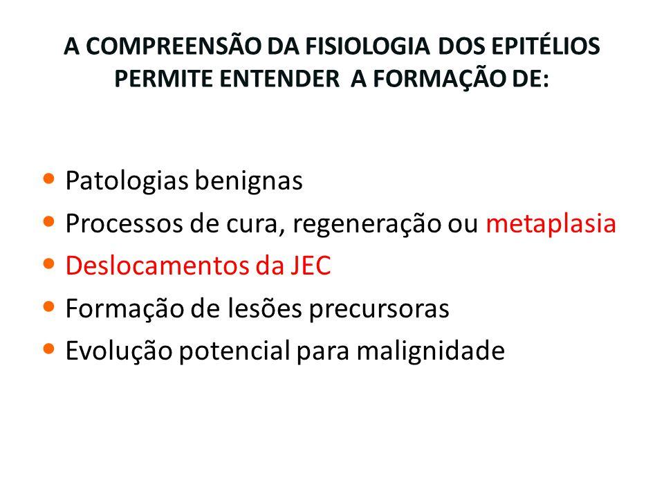 A COMPREENSÃO DA FISIOLOGIA DOS EPITÉLIOS PERMITE ENTENDER A FORMAÇÃO DE: Patologias benignas Processos de cura, regeneração ou metaplasia Deslocament