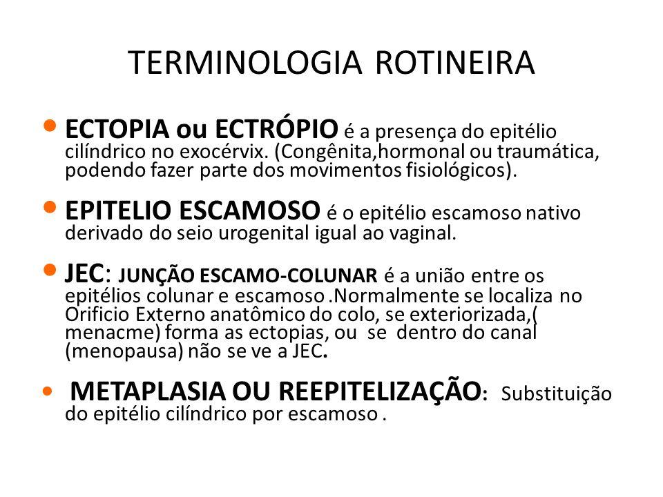 TERMINOLOGIA ROTINEIRA ECTOPIA ou ECTRÓPIO é a presença do epitélio cilíndrico no exocérvix. (Congênita,hormonal ou traumática, podendo fazer parte do