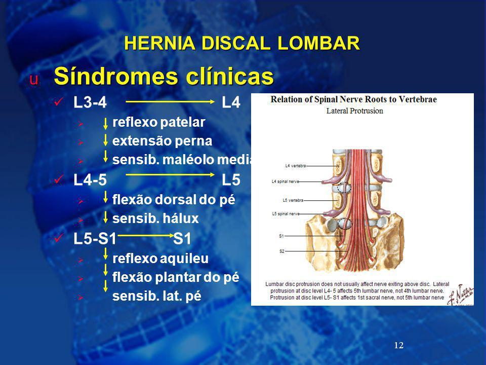 12 HERNIA DISCAL LOMBAR u Síndromes clínicas L3-4L4  reflexo patelar  extensão perna  sensib. maléolo medial L4-5L5  flexão dorsal do pé  sensib.