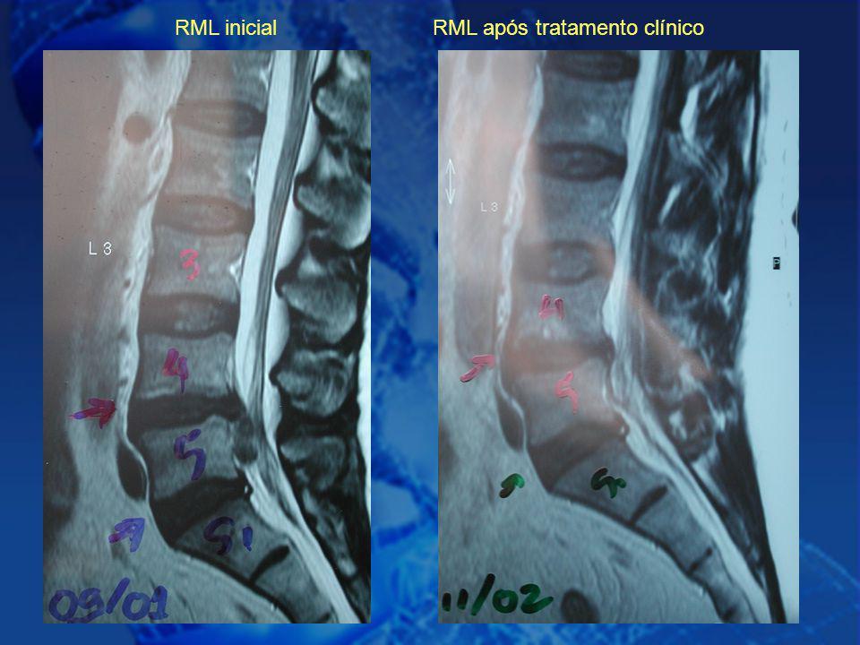 19 RML inicial RML após tratamento clínico